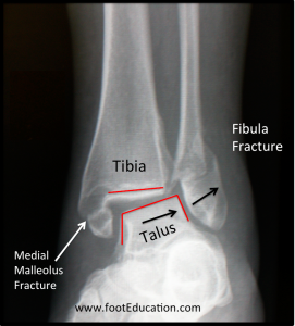 Plain X-Ray of an Unstable Ankle Fracture