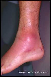 Ankle swelling and redness post-ankle sprain