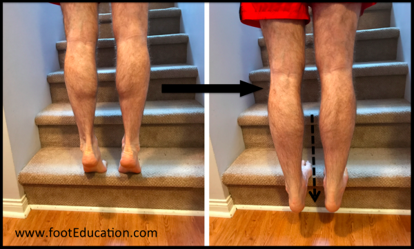 Eccentric Calf Stretching, Eccentric Achilles Tendon Exercises (ex. Heel Drops)
