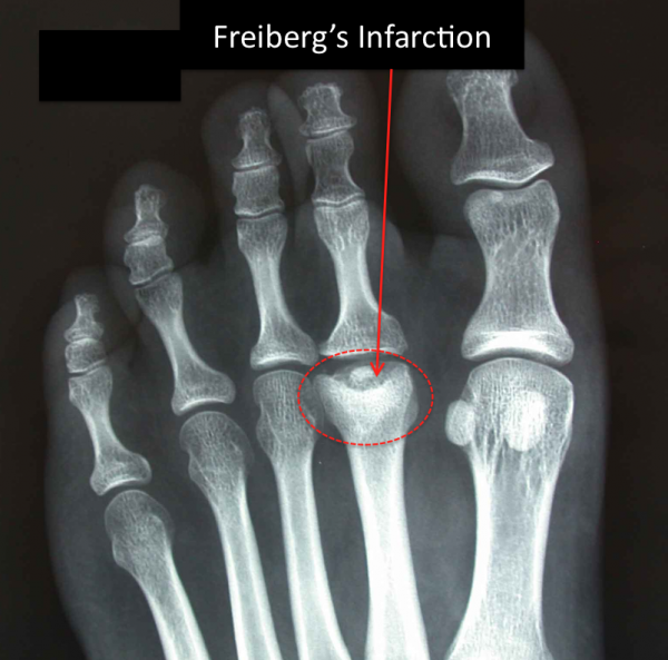 Freiberg's Infarction shown on x-ray