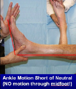 Limited motion through the ankle joint