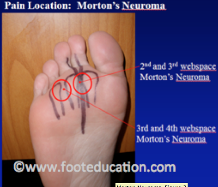 Mortons Neuroma Pain