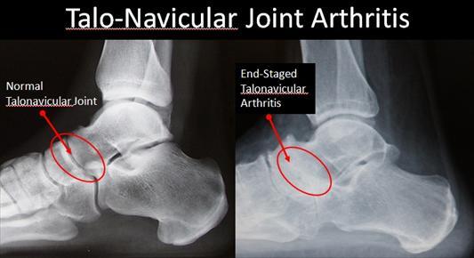 Normal vs Arthritic Talonavicular Joint