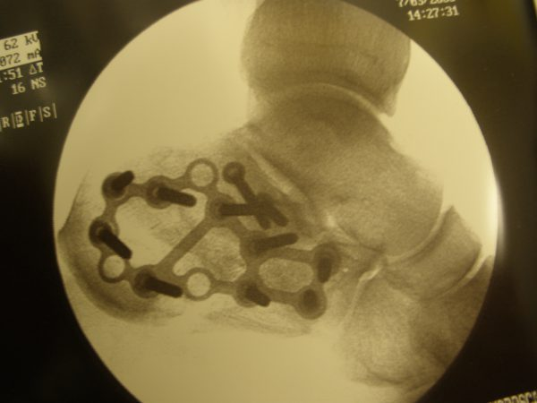 Calcaneus following surgical fixation