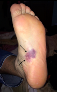 Bruising in the sole of the foot after plantar fascia rupture