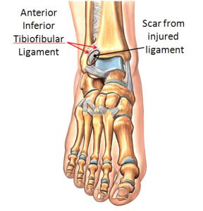 Scarred Anterior Inferior Tibiofibular Ligament