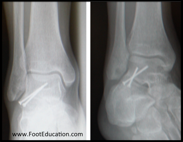 Surgical Fixation of the Lateral Process Fracture of the Talus