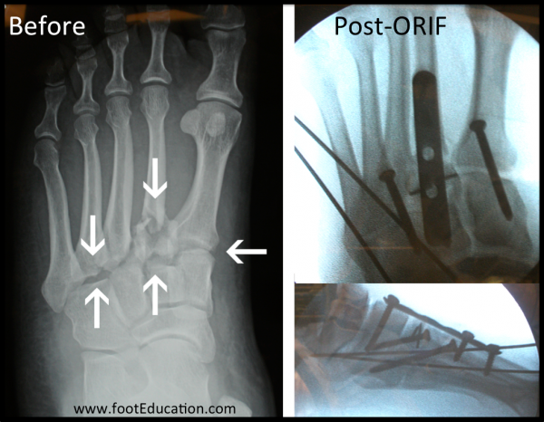 Surgical Treatment of Lisfranc Injury