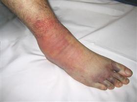 Swollen foot following trauma