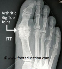 Weight-bearing x-rays showing Hallux Rigidus