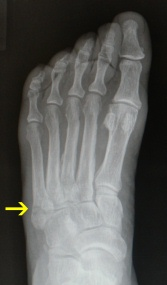 Dancers Fracture X-ray from the top