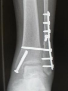 unstable ankle fracture stabilized with surgery