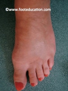 After SCARF Osteotomy Bunion Correction