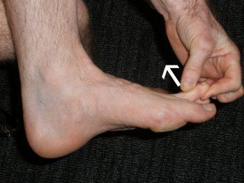 Toe Flexibility Exercise 1
