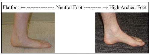 Foot Type Spectrum