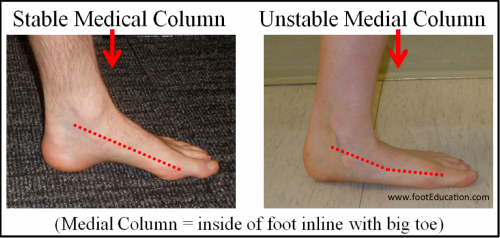 Medial Column Hypermobility, Characteristic of a Flat foot