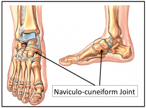 Naviculocuneiform Joint of the foot