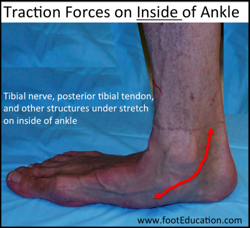 Traction Forces Flatfoot on the inside of the ankle