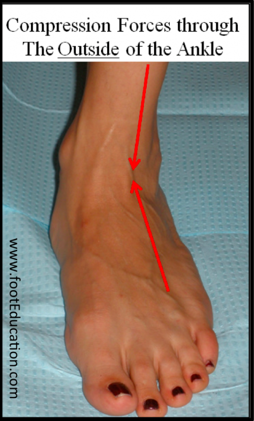 Compression Forces in Flatfoot on the outside of the ankle