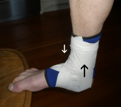 "Ankle Taping Step 4 Lateral ""heel Lock"" taping outside to inside"