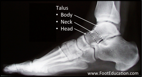 Talus Anatomy of the foot