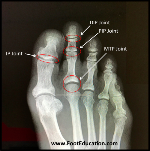 Joints of the Toes