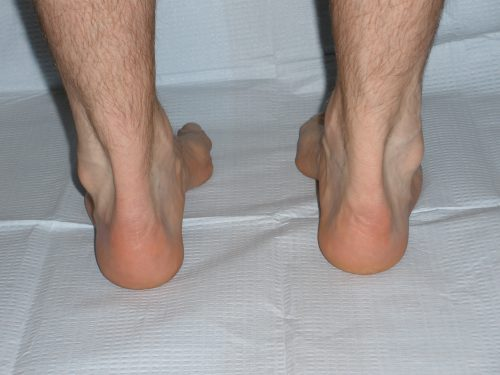 Hindfoot Varus, High arched foot