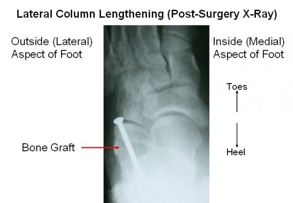Lateral column lengthening through the calcaneus, post surgical xray