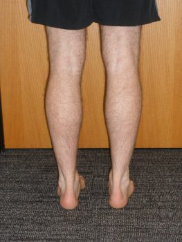 double leg heel rise, resting state