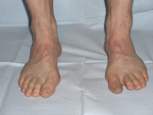Peek-a-Boo Heel Sign, high arched foot