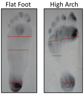 imprints from flatfoot and high arched feet on harris mat