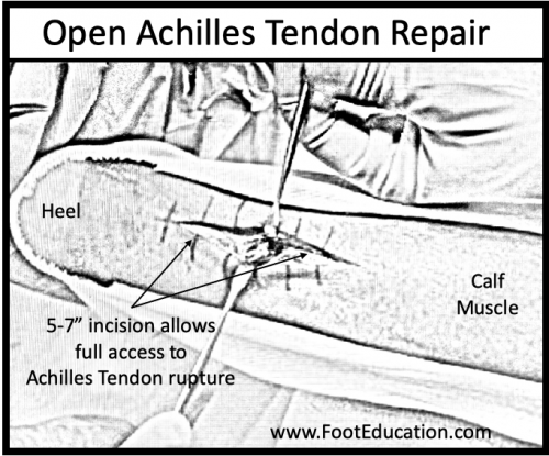 Open Achilles Tendon Repair diagram