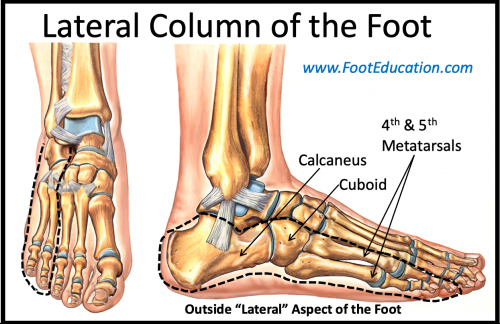 Lateral Column Lengthening Footeducation